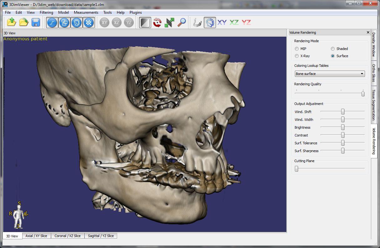 3DimViewer 3.1.1 software screenshot